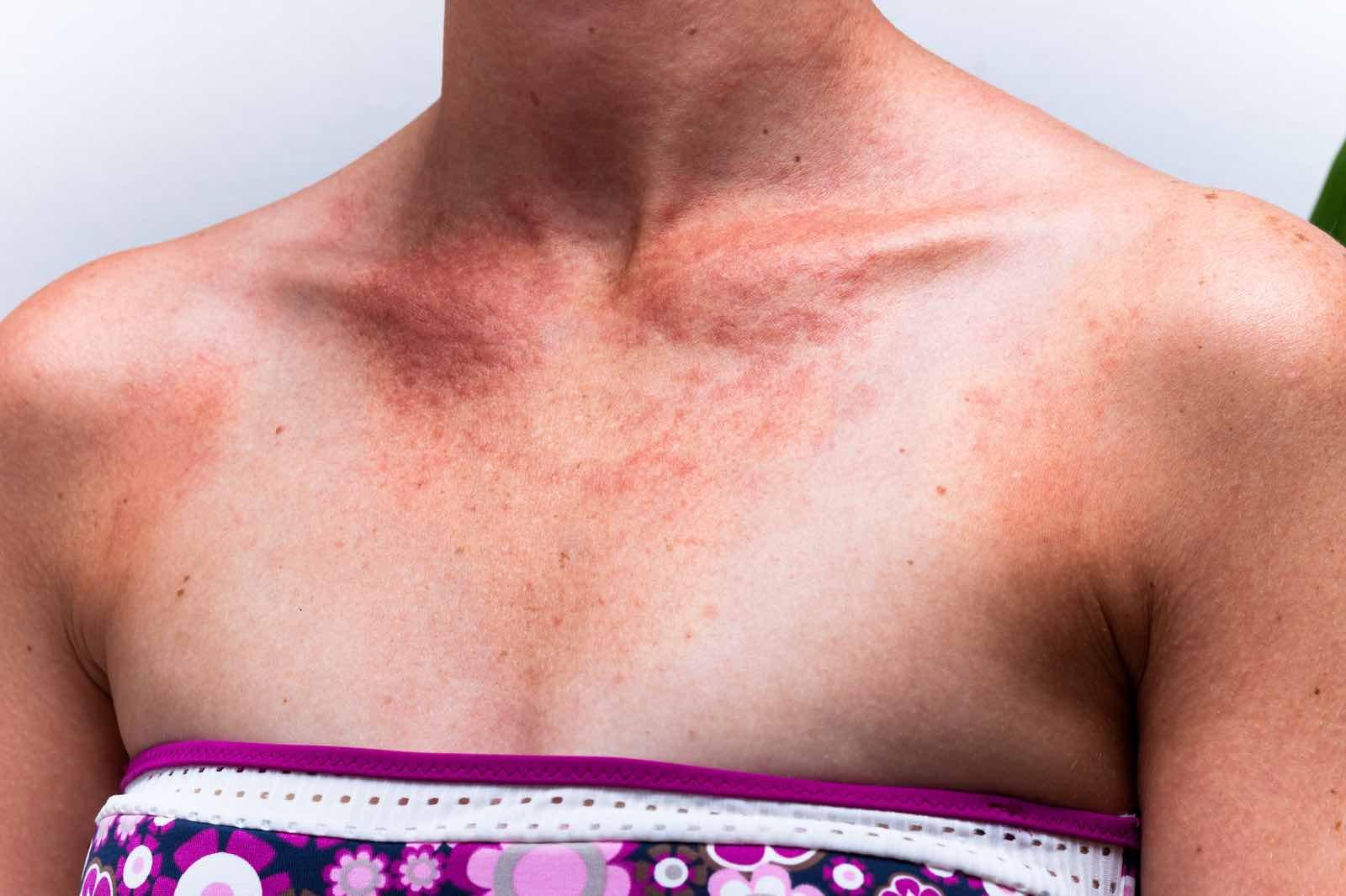 Sunscreen allergy